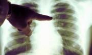 Cánceres de pulmón: 9 de cada 10 son producto del tabaquismo