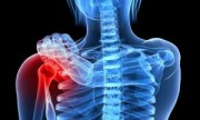 Estiman que la vitamina E podría perjudicar a los huesos