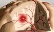 Recomendaciones para prevenir un ataque cerebral