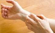 Psoriasis, mucho más que una enfermedad de la piel