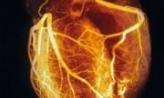 Hallan forma de reducir lesiones del corazón
