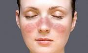 Todo lo que hay que saber sobre lupus