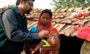 Informan avances en la lucha contra la polio