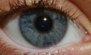 Degeneración macular asociada a la edad, un problema ocular serio