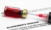 Vacuna contra Alzheimer ya se prueba en humanos