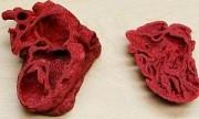 Corazón impreso en 3D ayudó a salvar un niño