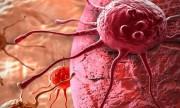 """""""Cambiar el estilo de vida previene la mitad de los tipos de cáncer"""""""