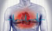 El riesgo de muerte súbita se puede diagnosticar y prevenir