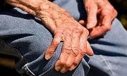 Parkinson: algo más que un trastorno de movimiento