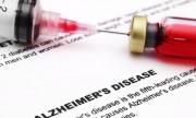 Prueba de sangre predeciría Alzheimer