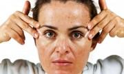 7 alimentos que afectan la salud de tu piel
