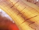 Una revisión sugiere que tener un latido cardiaco irregular duplica el riesgo de sufrir 'ACV silenciosos'