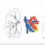 Hipertensión pulmonar, una enfermedad grave que se diagnostica poco