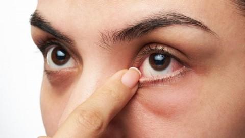 como-evitar-recurrentes-alergas-oculares
