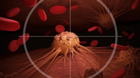 tratamiento-leucemia