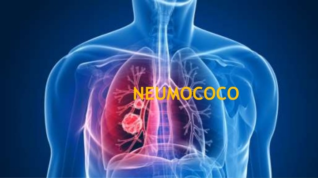 neumococo-etiologia